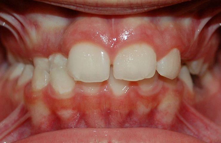 Cross Bite Before and After Invisible Braces Pictures