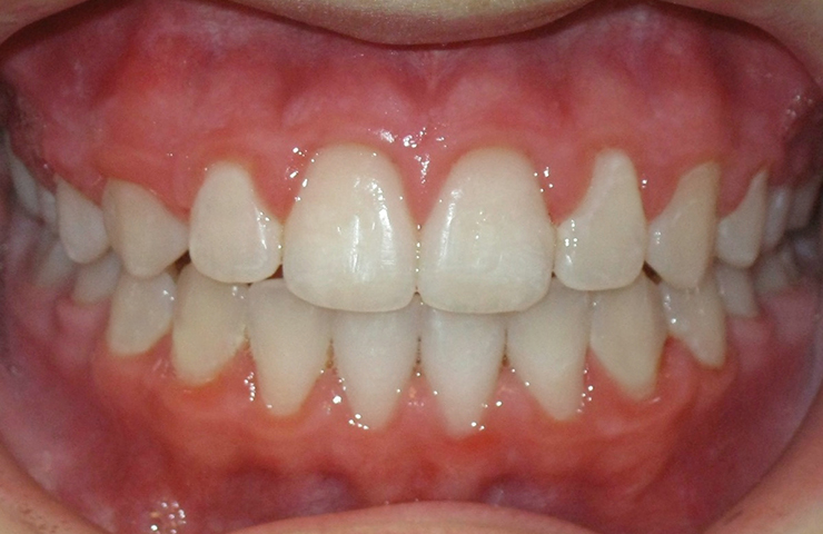 Cross Bite Before and After Dental Braces Pictures