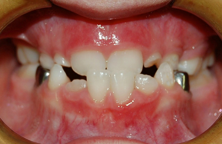 Cross Bite Before and After Dental Braces Photos