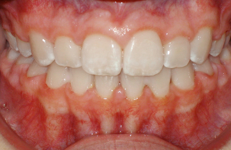 Cross Bite Before and After Orthodontic Care Photos