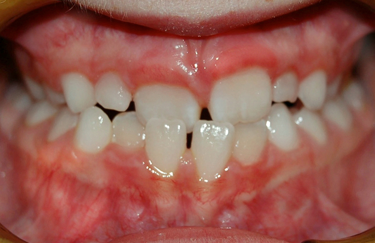 Cross Bite Before and After Orthodontic Care