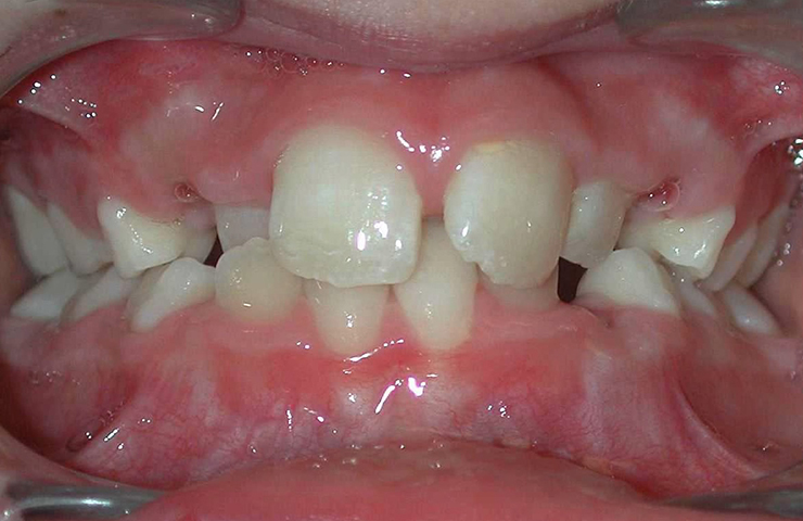 Cross Bite Before and After Orthodontic Care Pictures