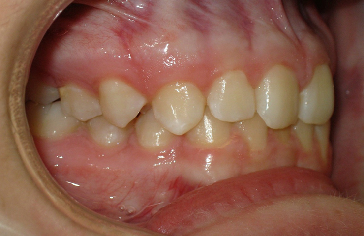 Cross Bite Before and After Braces Pictures