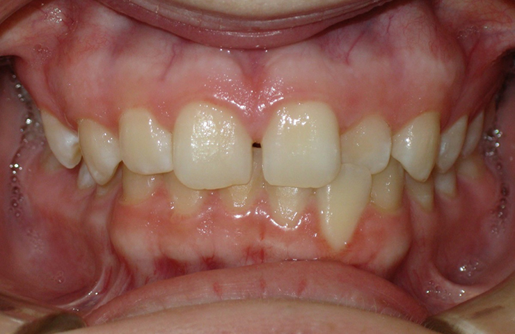 Cross Bite Before and After Braces