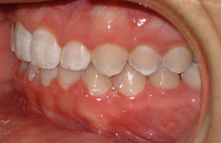 Cross Bite Before and After Orthodontic Treatment Pictures