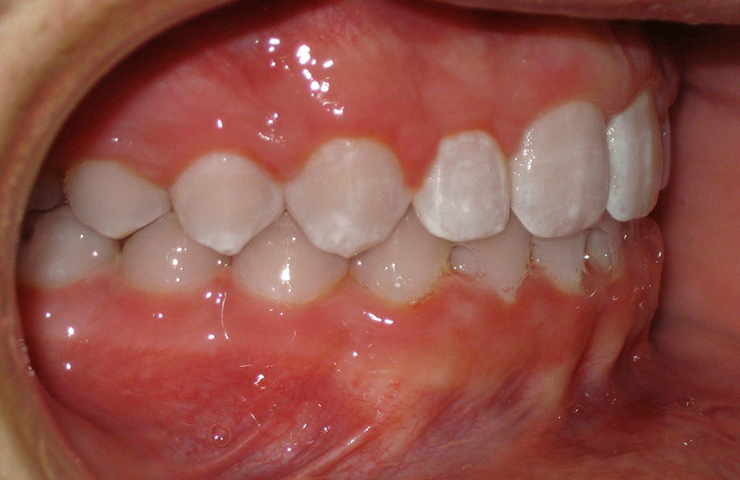 Cross Bite Before and After Orthodontic Treatment