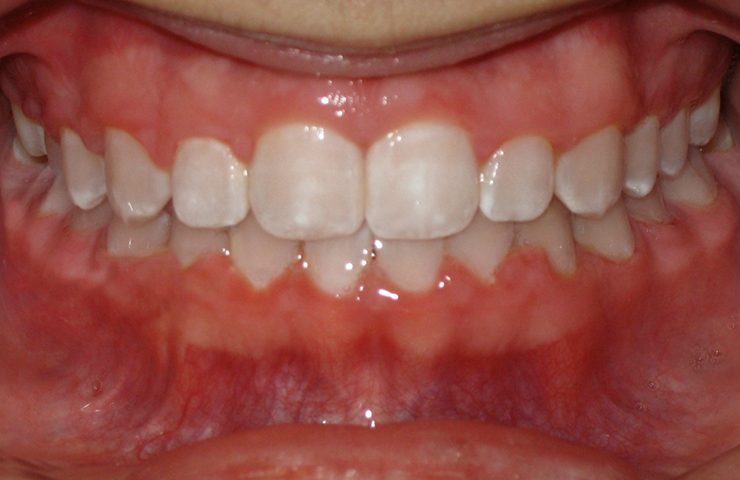 Cross Bite Before and After Orthodontic Treatment Photos
