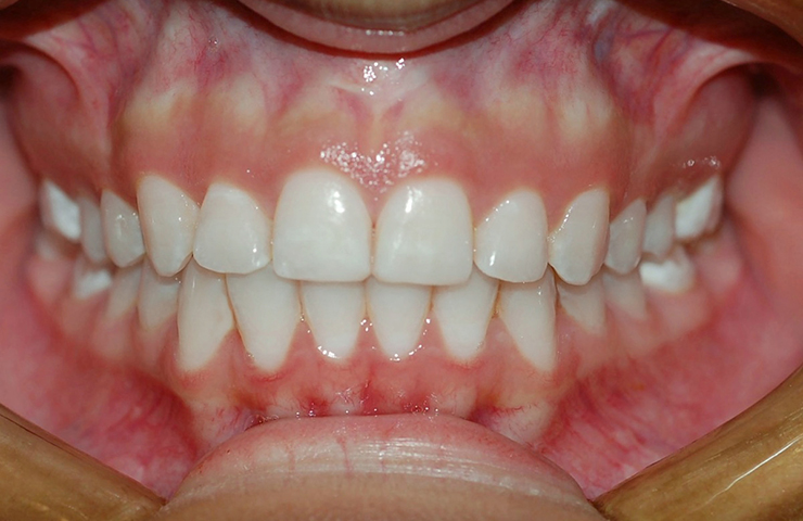 Crowding Before and After Invisalign Photos