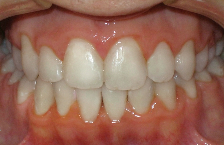 Crowding Before and After Straightening Teeth