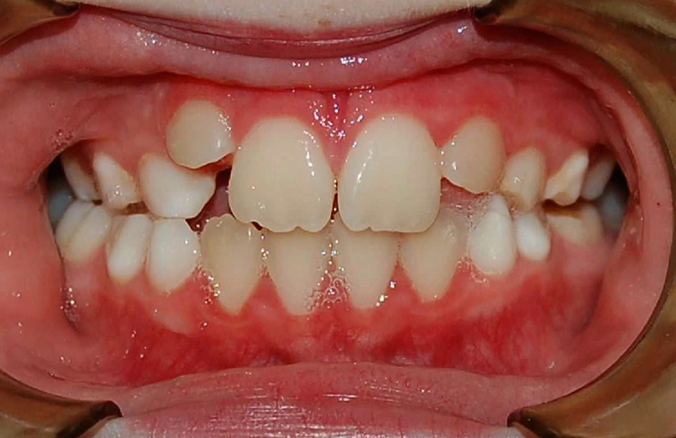 Crowding Before and After Straightening Teeth Photos