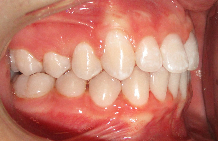 Crowding Before and After Invisible Braces