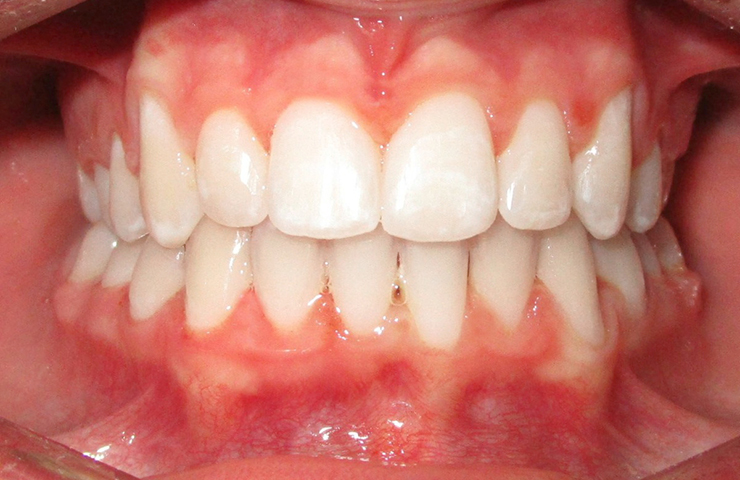 Crowding Before and After Invisible Braces Photos