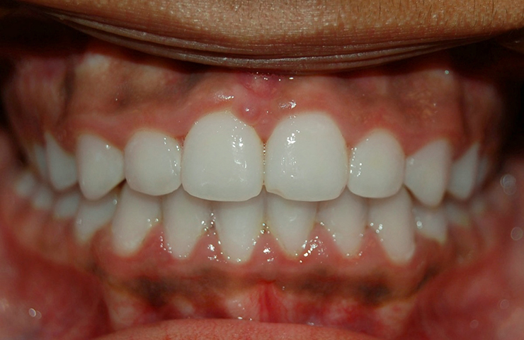 Crowded Teeth Before and After Straightening Teeth Photos