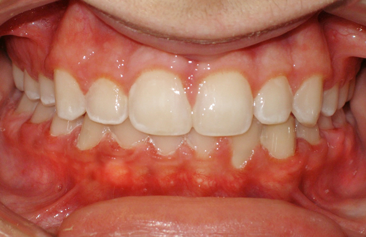 Crowded Teeth Before and After Braces