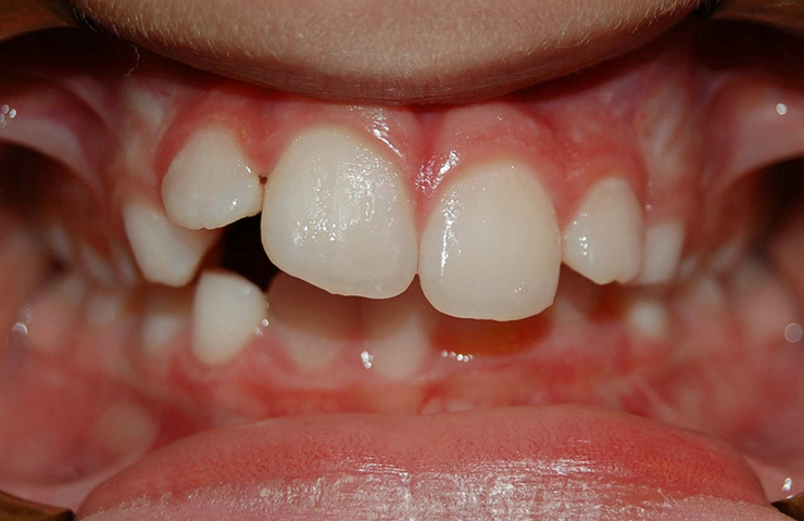 Crowded Teeth Before and After Straightening Teeth Pictures