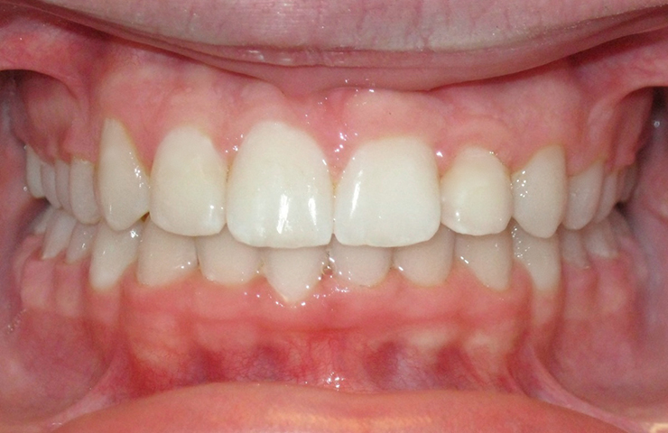 Crowded Teeth Before and After Braces Pictures