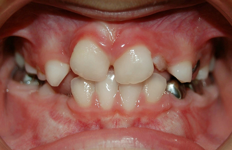 Crowded Teeth Before and After Invisalign