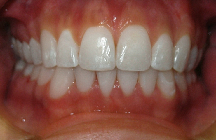 Crowded Teeth Before and After Invisalign Images