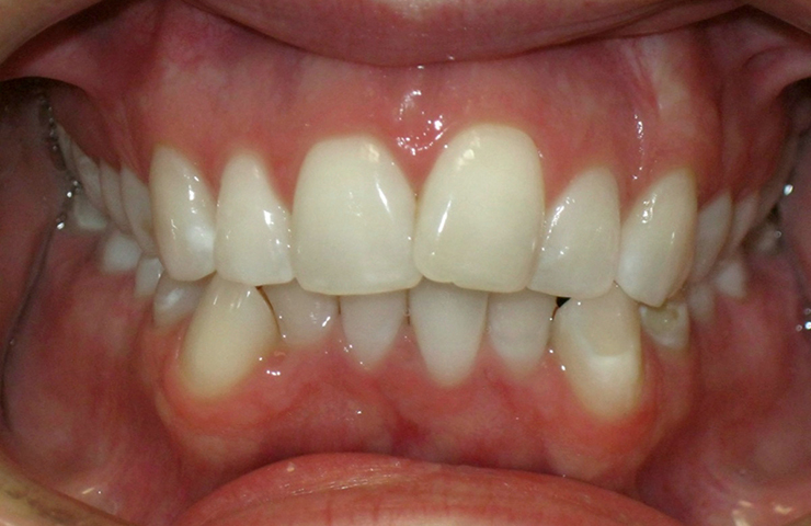Crowded Teeth Before and After Invisalign Pictures