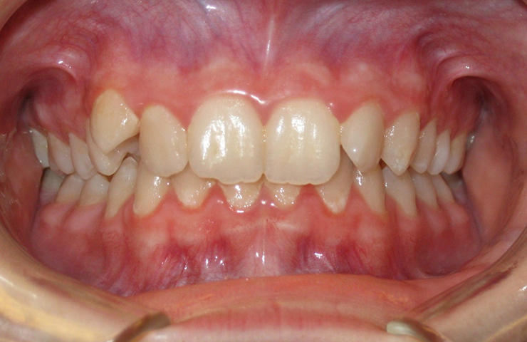 Free orthodontics for adults in alabama