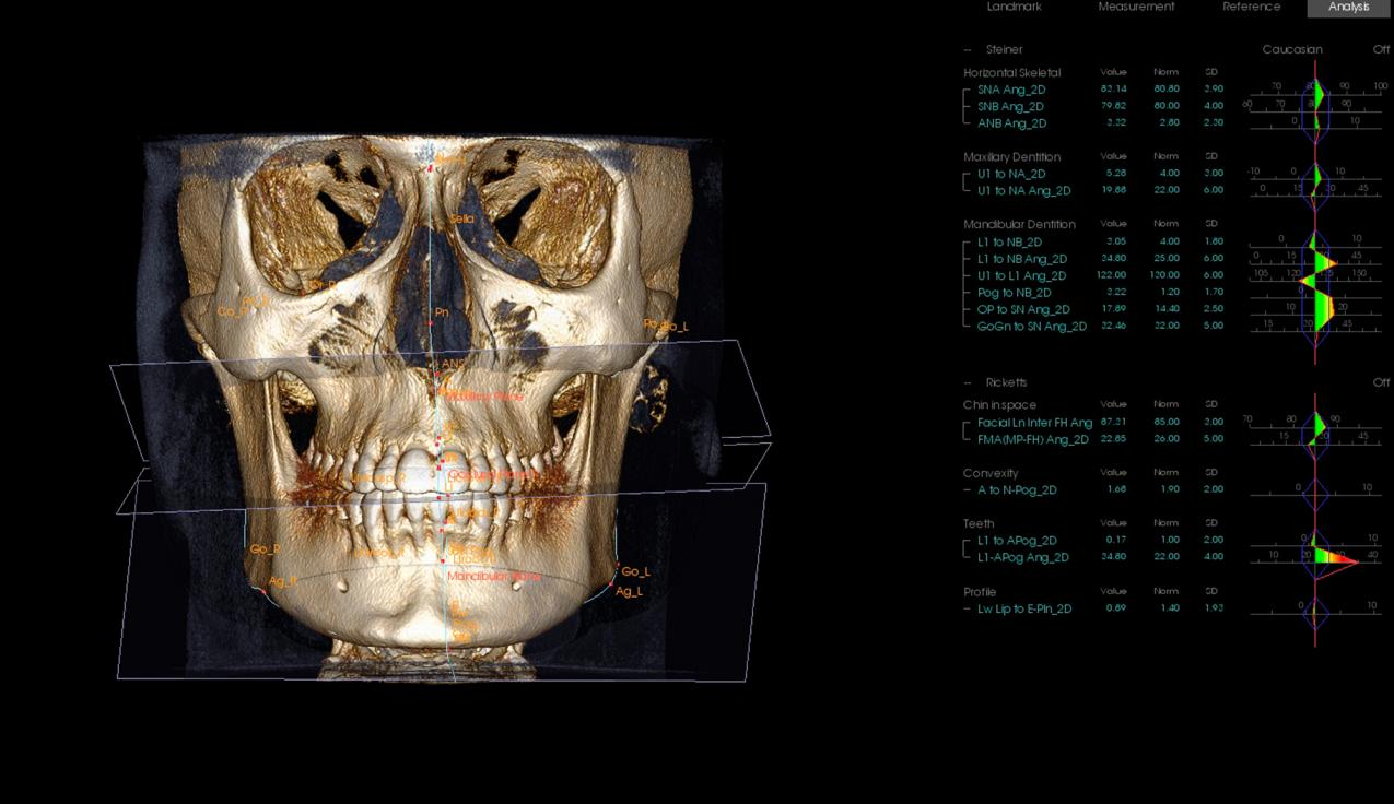 Our i-CAT® Cone Beam 3D Dental Imaging