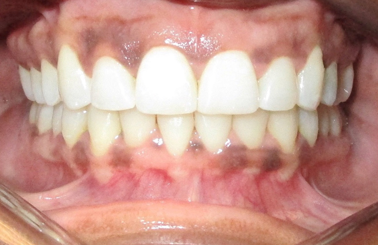 Clear Braces Before and After