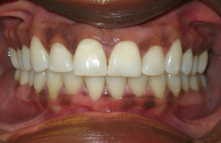 Invisalign Clear Braces Before and After Photos