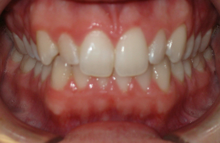 Invisible Braces Before and After Photos