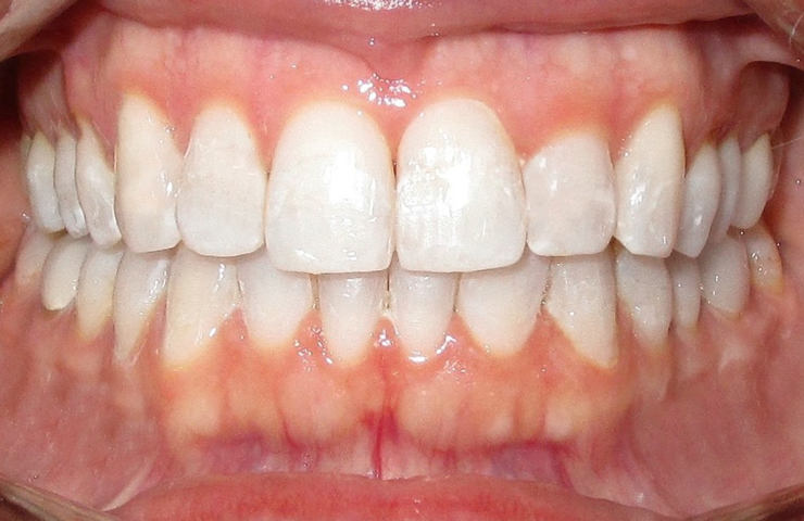 Invisalign Smiles Before and After