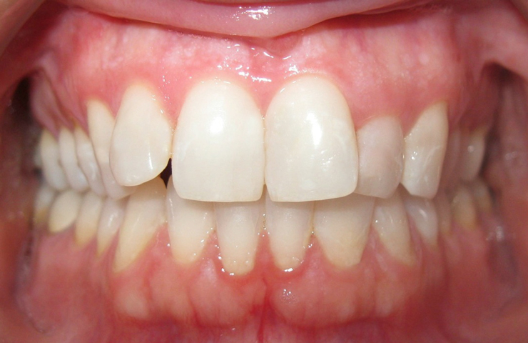 Clear Braces Before and After Invisalign Pictures