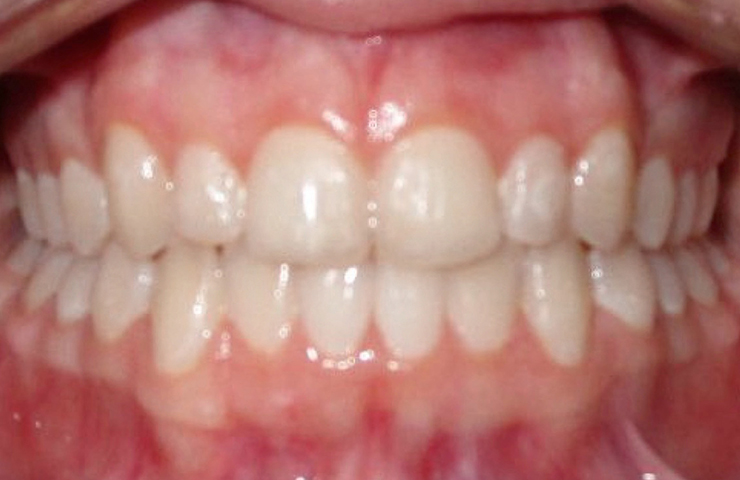Invisalign Braces Before and After Pictures