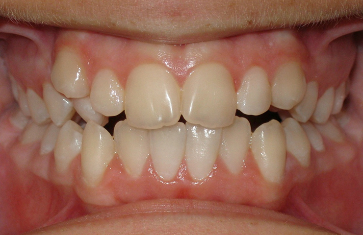 Invisalign Braces Before and After