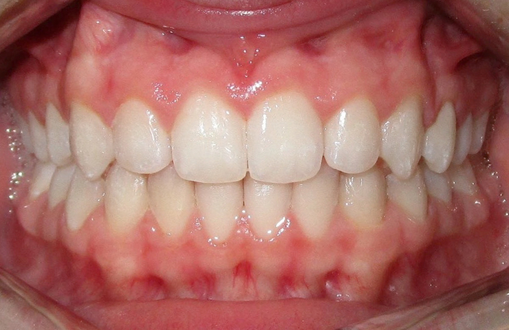 Invisalign Clear Braces Before and After Pictures