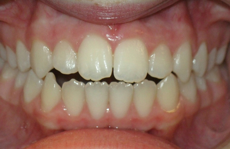 Invisalign Clear Braces Before and After