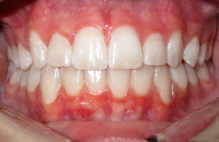 Invisible Braces Before and After Pictures