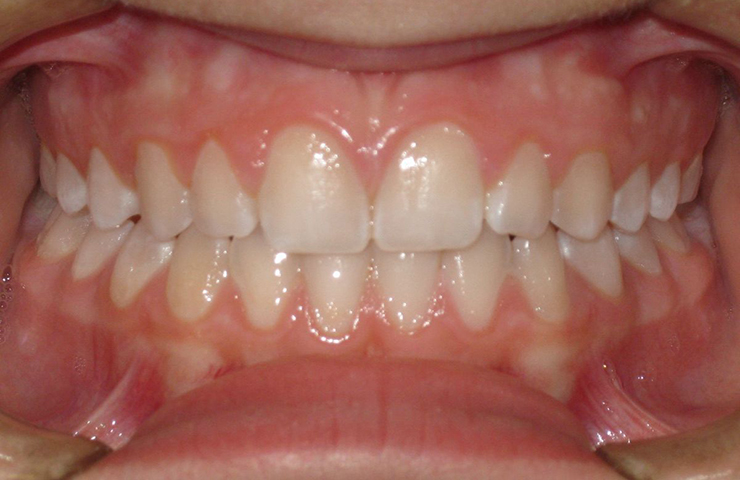 Open Bite Before and After Braces Photos