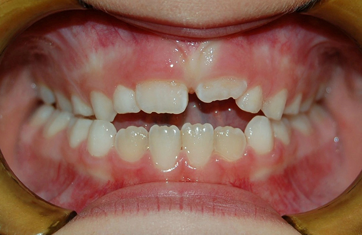 Open Bite Before and After Braces