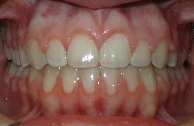 Open Bite Before and After Orthodontic Treatment