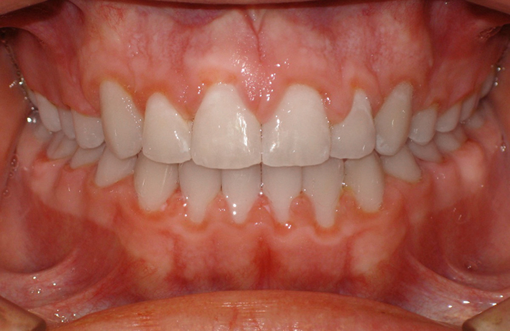 Open Bite Before and After Orthodontic Treatment Photos
