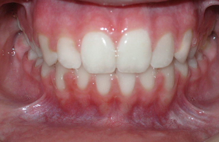 Protrusion Before and After Braces Pictures