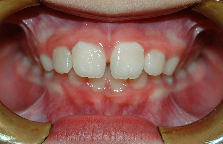 Protrusion Before and After Braces
