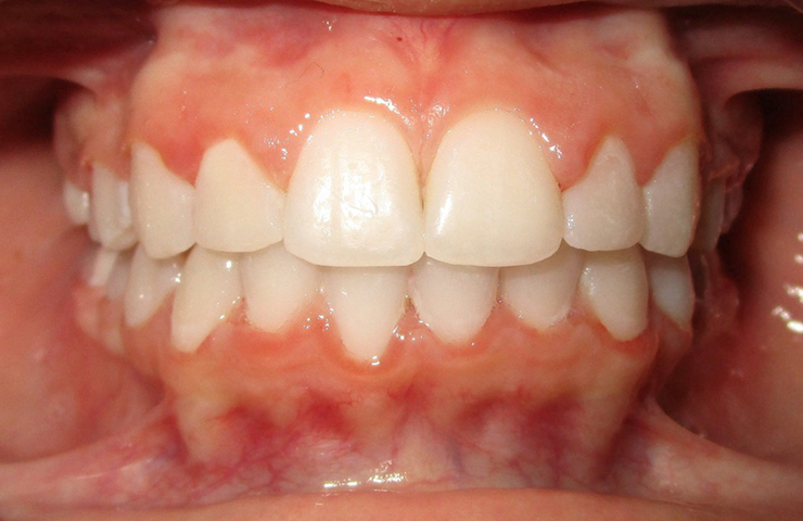 Protrusion Before and After Orthodontic Treatment