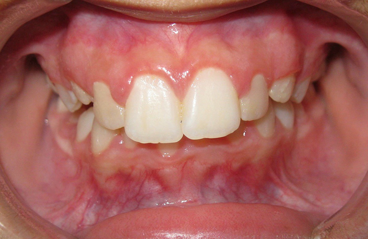 Protrusion Before and After Braces Photos