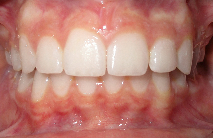 Protrusion Before and After Orthodontic Treatment Photos