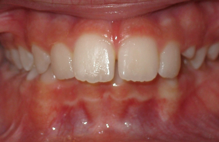 Protrusion Before and After Orthodontic Treatment Pictures
