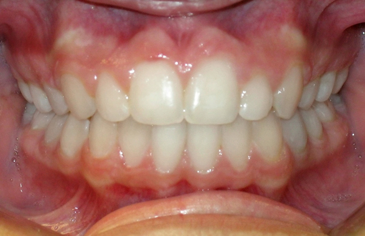 Protrusion Before and After Invisalign Pictures