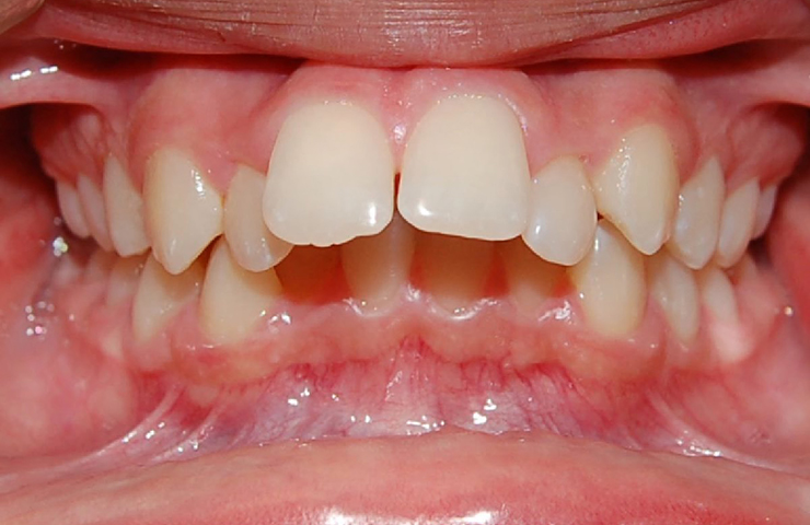 Protrusion Before and After Invisalign