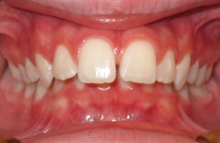 Protrusion Before and After Invisalign Photos