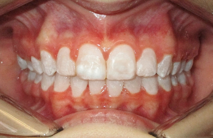 Protrusion Before and After Invisible Braces Pictures