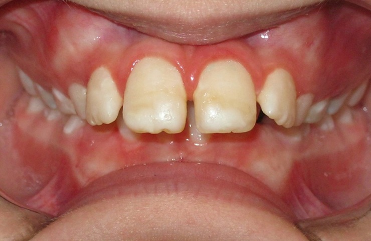 Protrusion Before and After Invisible Braces